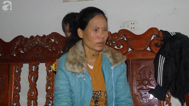 Chị Hải nhớ lại việc nín thở giả vờ chết để thoát khỏi bàn tay người chồng.