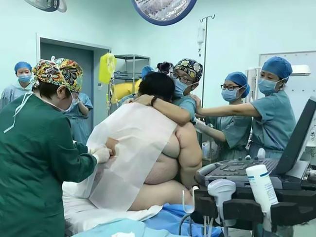 Cả ê-kíp 16 bác sĩ, ý tá hợp sức đỡ đẻ cho bà mẹ nặng hơn 1 tạ - Ảnh 1.