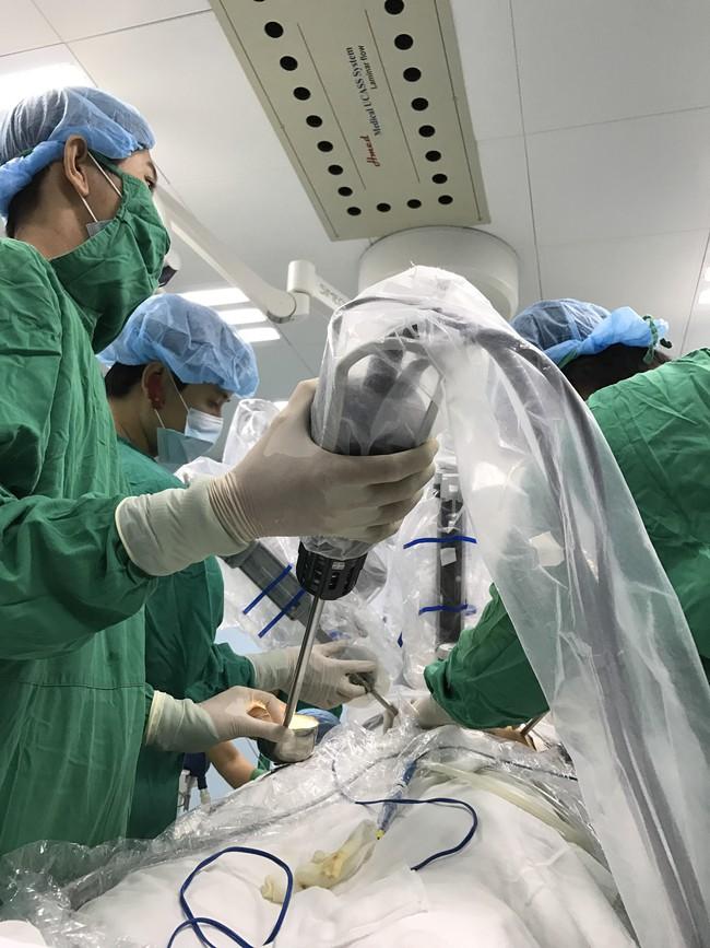 Lần đầu tiên tại Việt Nam, một bệnh nhân ung thư dạ dày được phẫu thuật bằng… robot - Ảnh 2.