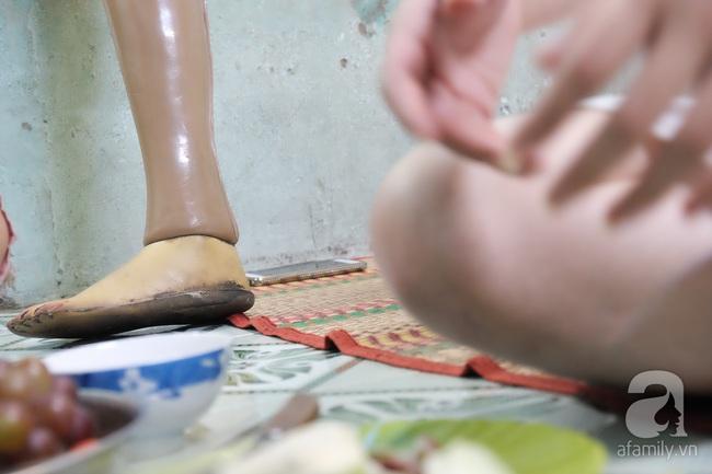 Cô gái 1 chân xinh đẹp: Em cố tiết kiệm tiền để đưa hai em bị mù sang nước ngoài chữa bệnh - Ảnh 14.