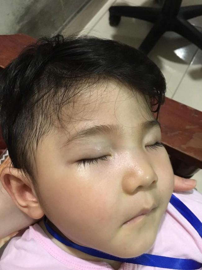 Sau gần 1 năm có mẹ nuôi, em bé Lào Cai đã tăng 10kg, bụ bẫm đáng yêu như thế này đây - Ảnh 5.