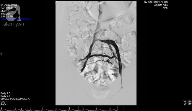 Phương pháp điều trị mới đem lại hy vọng cho nhiều phụ nữ bị phù loét chân do hội chứng chèn ép tĩnh mạch - Ảnh 4.