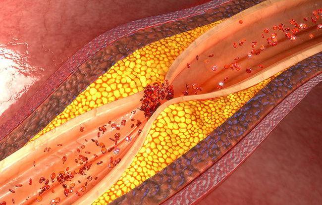 Những bệnh có triệu chứng giống bệnh hen suyễn mà nhiều người rất dễ nhầm lẫn - Ảnh 3.