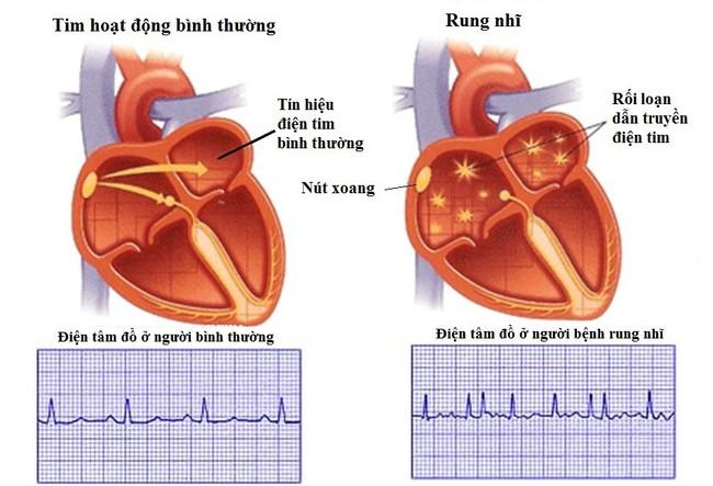 6 dấu hiệu cảnh báo có thể bạn đang bị bệnh tim tiềm ẩn mà không hề hay biết - Ảnh 5.