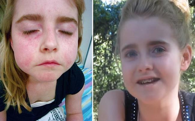 Loại bỏ 3 thứ khỏi chế độ ăn, cô bé 10 tuổi chữa khỏi bệnh nghiêm trọng - Ảnh 1.
