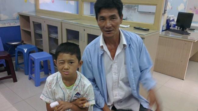Cậu bé bị tổn thương mắt nặng nề sau khi cục pin đồ chơi phát nổ.