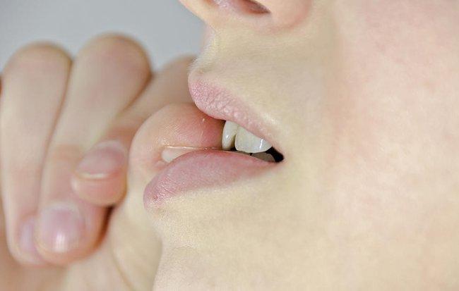 Đừng coi thường thói quen cắn móng tay, chúng có thể là nguyên nhân dẫn đến những chứng bệnh này - Ảnh 2.
