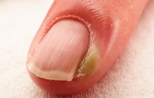 Đừng coi thường thói quen cắn móng tay, chúng có thể là nguyên nhân dẫn đến những chứng bệnh này - Ảnh 3.