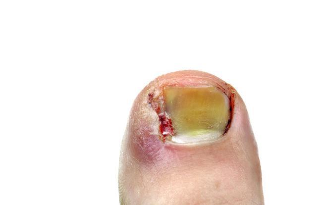 Đừng coi thường thói quen cắn móng tay, chúng có thể là nguyên nhân dẫn đến những chứng bệnh này - Ảnh 5.