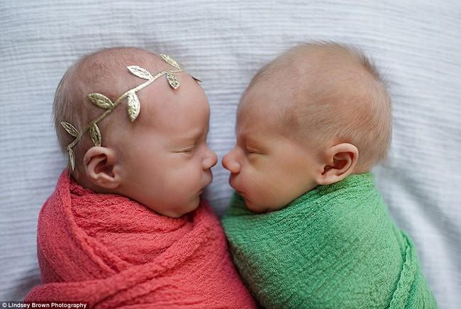 Bộ ảnh xúc động của cậu bé chỉ sống được 11 ngày bên em gái song sinh - Ảnh 3.