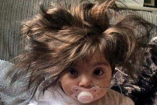 Ai cũng nghĩ bé gái 8 tháng tuổi này đội tóc giả cho tới khi biết sự thật... - Ảnh 1.