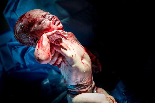 Bức ảnh có 1-0-2: Em bé chào đời với dây rốn quấn quanh bụng - Ảnh 6.
