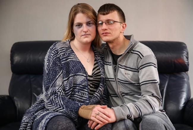 Sự thật phía sau câu chuyện người phụ nữ bị chồng chưa cưới hành hung đến bầm mặt - Ảnh 1.
