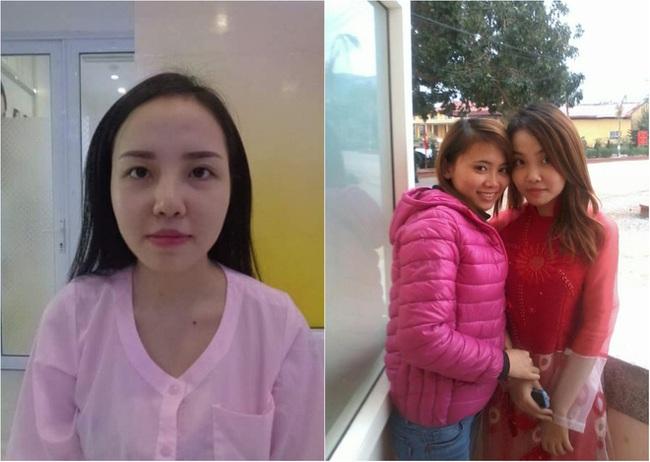 Bị bạn trai bỏ vì người thứ 3 xinh đẹp, cô gái Quảng Ninh chi tiền khủng đi thẩm mỹ - Ảnh 2.