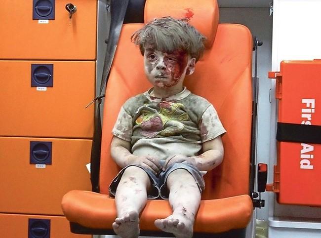 Dân mạng bật khóc trước clip cô bé Syria mặt rớm máu vẫn mỉm cười - Ảnh 4.