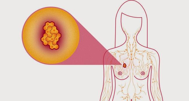 Đây là 4 vấn đề sức khỏe phổ biến mà rất nhiều chị em lo lắng - Ảnh 3.