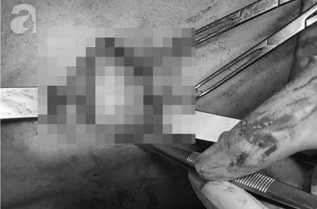 TP.HCM: Bơm silicon để ngực to như phụ nữ, nam thanh niên phải nhận cái kết đắng - Ảnh 3.