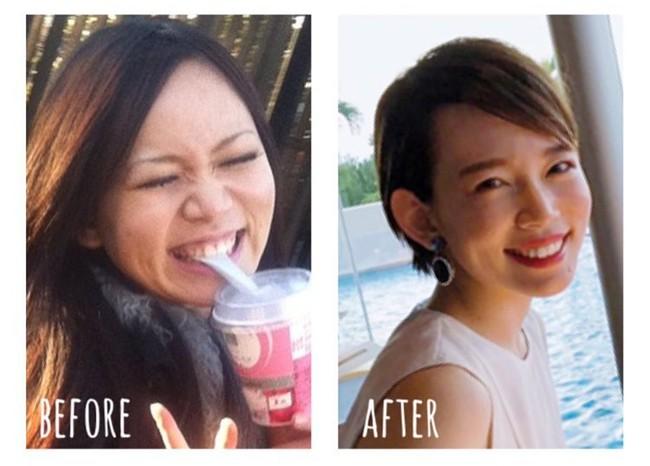Cô gái Nhật Bản giảm 20kg nhờ phương pháp xoa bóp bấm huyệt: Đặc biệt: Có thể tự làm và rất phù hợp với chị em văn phòng - Ảnh 1.