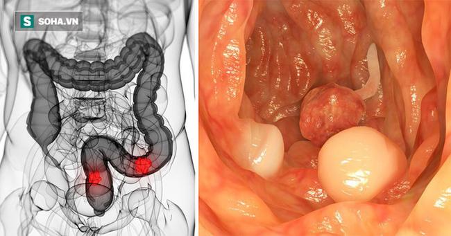 5 dấu hiệu điển hình cảnh báo khối u ung thư đại trực tràng đang phát triển thần tốc - Ảnh 1.
