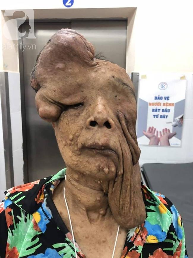 TP.HCM: Nữ dị nhân 10 năm không dám ra đường vì gương mặt vừa chảy vừa nổi cục, méo mó biến dạng khủng khiếp - Ảnh 1.