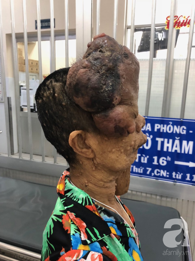 TP.HCM: Nữ dị nhân 10 năm không dám ra đường vì gương mặt vừa chảy vừa nổi cục, méo mó biến dạng khủng khiếp - Ảnh 3.