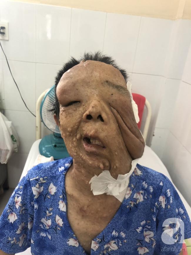 TP.HCM: Nữ dị nhân 10 năm không dám ra đường vì gương mặt vừa chảy vừa nổi cục, méo mó biến dạng khủng khiếp - Ảnh 4.