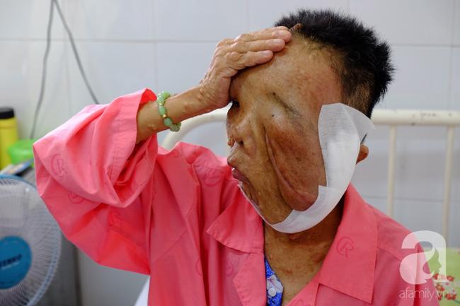TP.HCM: Nữ dị nhân 10 năm không dám ra đường vì gương mặt vừa chảy vừa nổi cục, méo mó biến dạng khủng khiếp - Ảnh 10.