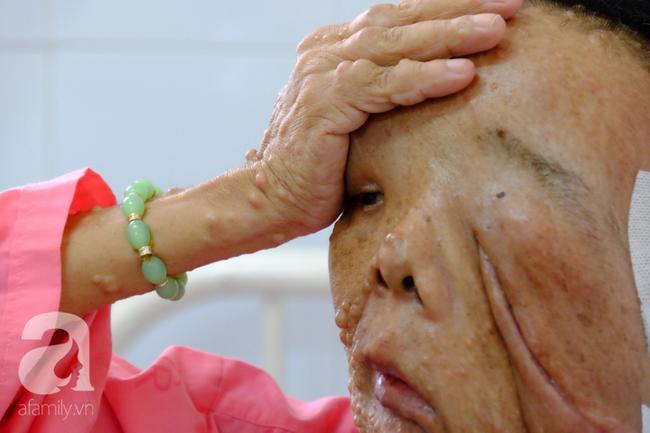 TP.HCM: Nữ dị nhân 10 năm không dám ra đường vì gương mặt vừa chảy vừa nổi cục, méo mó biến dạng khủng khiếp - Ảnh 7.