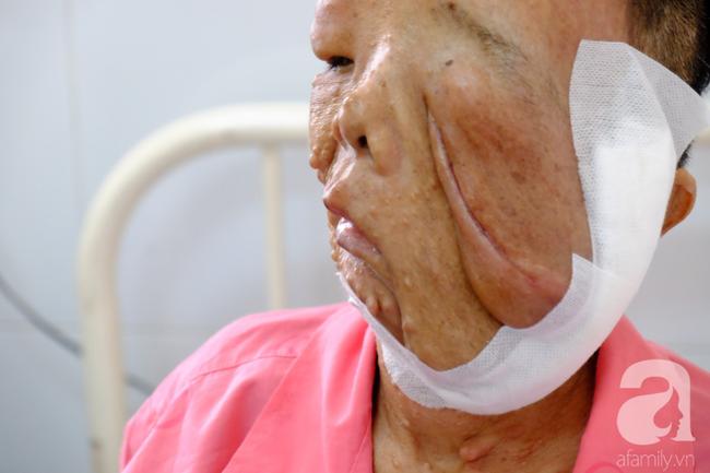TP.HCM: Nữ dị nhân 10 năm không dám ra đường vì gương mặt vừa chảy vừa nổi cục, méo mó biến dạng khủng khiếp - Ảnh 12.