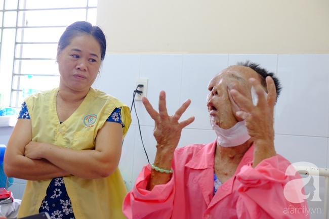 TP.HCM: Nữ dị nhân 10 năm không dám ra đường vì gương mặt vừa chảy vừa nổi cục, méo mó biến dạng khủng khiếp - Ảnh 9.