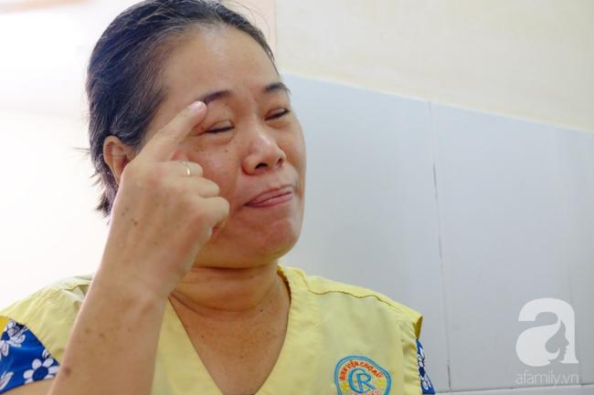 TP.HCM: Nữ dị nhân 10 năm không dám ra đường vì gương mặt vừa chảy vừa nổi cục, méo mó biến dạng khủng khiếp - Ảnh 8.