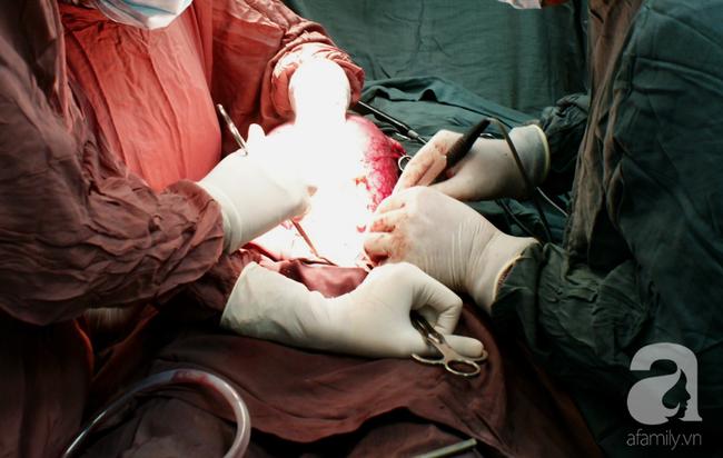 Đang nằm trên bàn mổ bắt con, mẹ 30 tuổi bất ngờ ngưng tim vì tai biến sản khoa vô cùng nguy hiểm - Ảnh 1.
