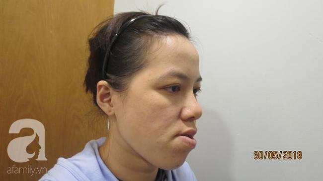 """27 năm không khép được miệng và bị gọi là """"đồ mặt méo"""", cô gái tiến hành ca đại phẫu đổi diện mạo và kết quả không ngờ - Ảnh 1."""