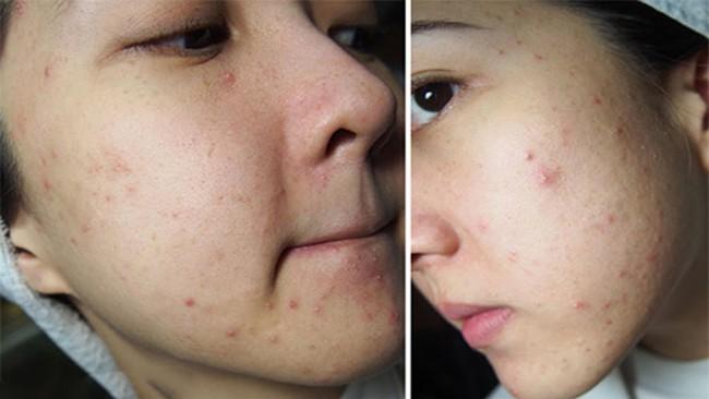 Chỉ cần có thêm các thành phần này trong mỹ phẩm, da bạn có sần sùi do mụn cũng nhanh chóng láng mịn - Ảnh 4.