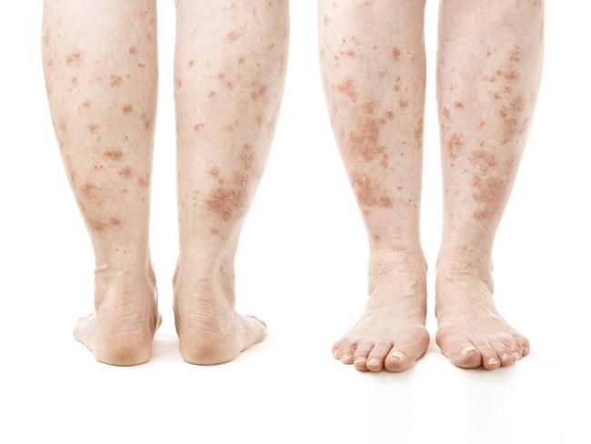 Thấy gót chân bị nứt nẻ nghiêm trọng có thể là do những nguyên nhân sau đây gây ra - Ảnh 3.