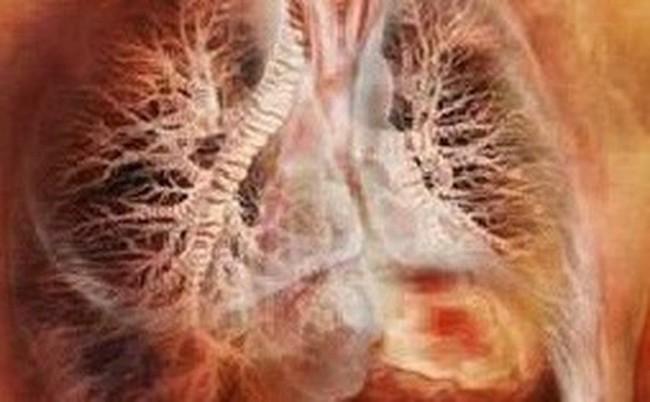 Mắc sai lầm khi ăn uống, cháu bé 5 tuổi bị sán làm tổn thương cả gan và phổi - Ảnh 2.