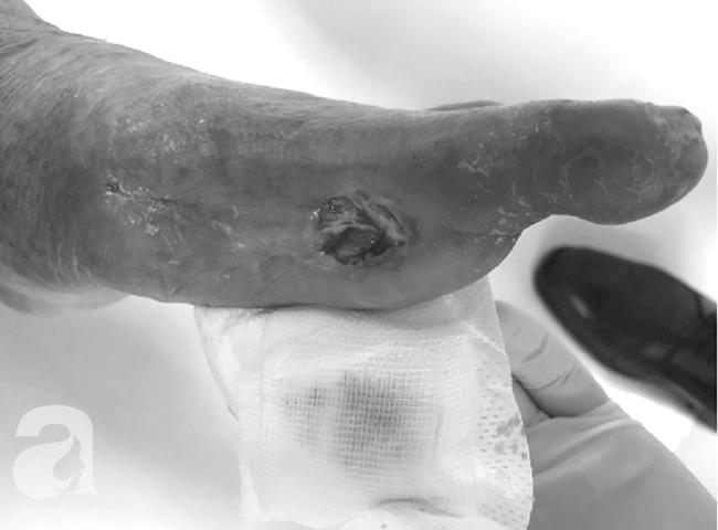 Tin vui: Nhờ phương pháp mới và hiệu quả này, người bệnh tiểu đường lâu năm, bị lở loét bàn chân sẽ được cứu - Ảnh 1.