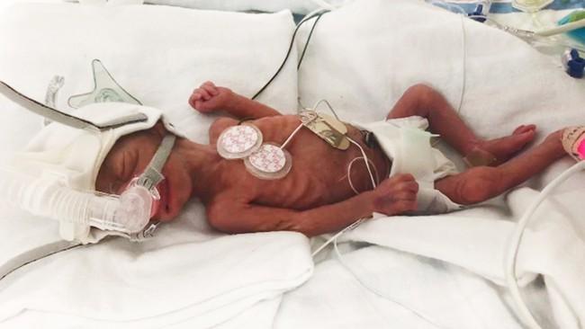 Sinh non tận 13 tuần, chỉ nặng vỏn vẹn 0,5kg nhưng phép màu đã đến với bé hạt tiêu này - Ảnh 1.