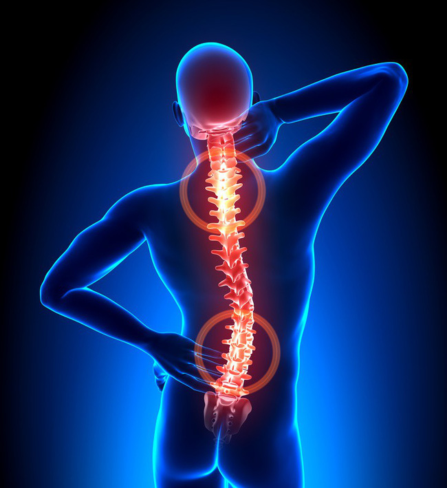 17 thói quen hàng ngày có thể làm giảm đau một cách đáng kể mà lại dễ làm - Ảnh 12.