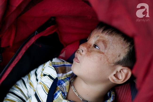 Giấc mơ bên chiếc xe nôi của người mẹ có con trai bỏng mắt do cháy nhà, 2 năm trời không thể khép mi ngủ - Ảnh 5.