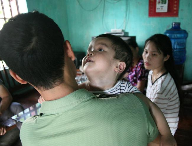Bé trai 22 tháng tuổi đau đớn trải qua 21 lần phẫu thuật, não và ổ bụng chằng chịt vết mổ  - Ảnh 8.