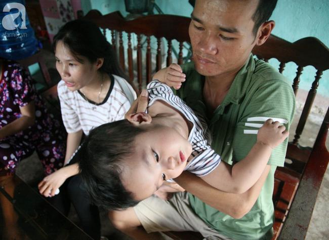 Bé trai 22 tháng tuổi đau đớn trải qua 21 lần phẫu thuật, não và ổ bụng chằng chịt vết mổ  - Ảnh 7.