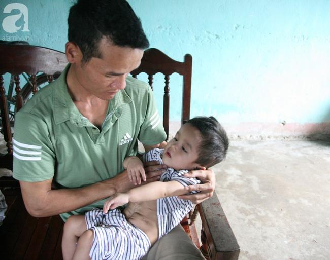 Bé trai 22 tháng tuổi đau đớn trải qua 21 lần phẫu thuật, não và ổ bụng chằng chịt vết mổ  - Ảnh 11.