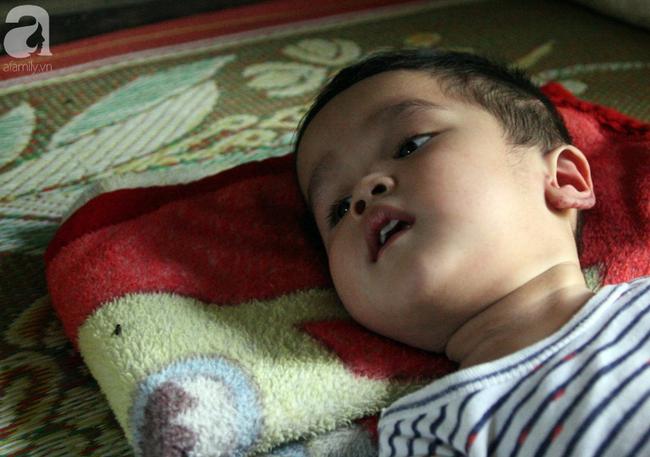 Bé trai 22 tháng tuổi đau đớn trải qua 21 lần phẫu thuật, não và ổ bụng chằng chịt vết mổ  - Ảnh 12.