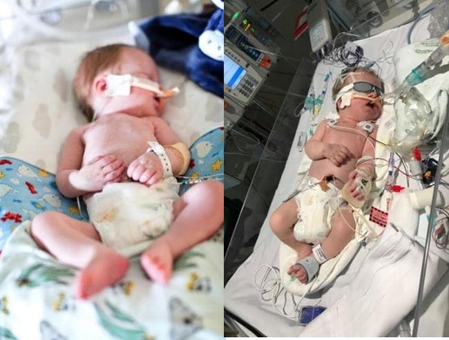 Bế con trên tay vẫn hồng hào nhưng mẹ không ngờ con đã đột tử vì hội chứng nguy hiểm ở trẻ sơ sinh - Ảnh 3.