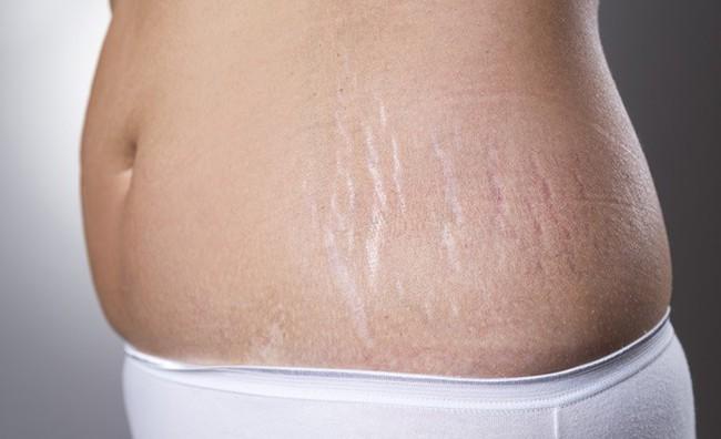 Các mẹ bầu sẽ không phải canh cánh nỗi lo rạn da với 5 lọ dầu dưỡng này - Ảnh 2.