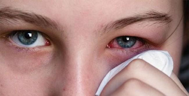 Người phụ nữ tự ý chữa đau mắt khiến suýt mù: Chuyên gia cảnh báo đừng dại làm theo cách chữa đau mắt phản khoa học này - Ảnh 4.