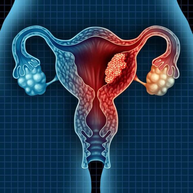 U nang buồng trứng đang tìm đến bạn nếu bạn có những dấu hiệu này - Ảnh 2.