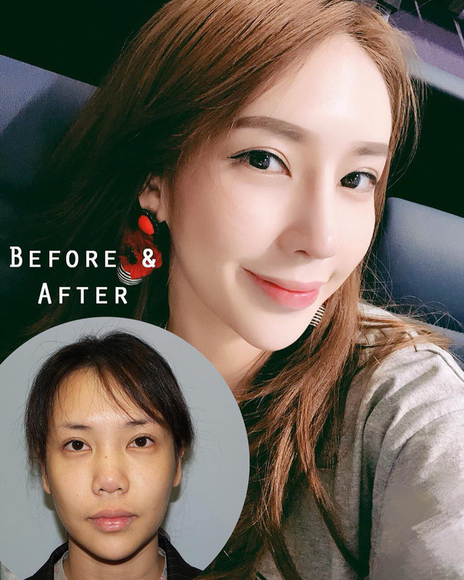 Phương pháp làm nhỏ mặt vi diệu của hầu hết idol Hàn đang gây xôn xao: Hiệu quả ngay sau 10 phút, không phẫu thuật đau đớn - Ảnh 1.