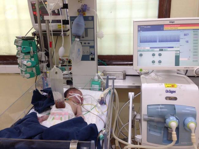 Chồng chết lặng sau khi tự đỡ đẻ cho vợ thấy con gái mới sinh bị lòi nội tạng ra ngoài - Ảnh 3.